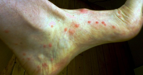 Flea Bites Picture Image on MedicineNet.com